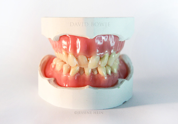 David Bowie Denture