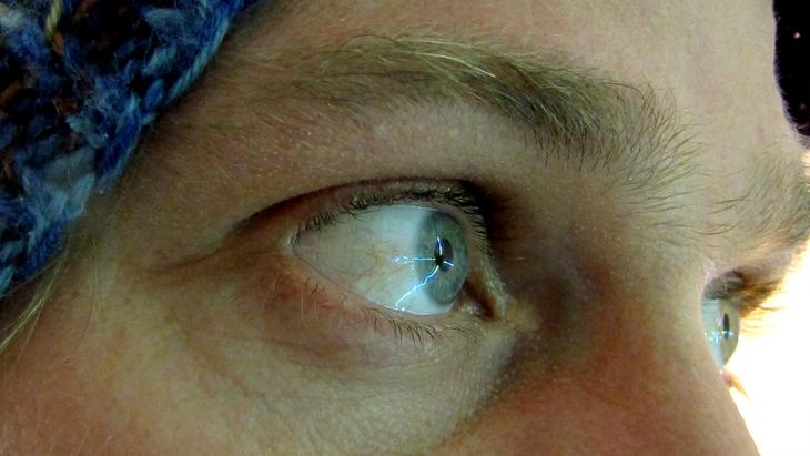 IMG_6555_C  BauArt AllStars - PAT KRAMER - Crosshaired Eyeball