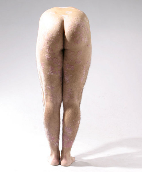 nude male with Psoriasis naked man with skin problem